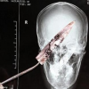 A Blade of 3.937 Inches Knife in its Brain !